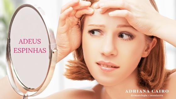 Tratamentos para acabar com a acne