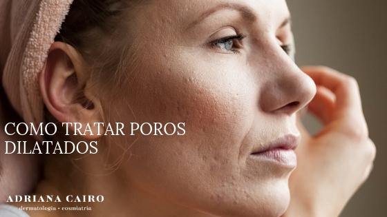 Tratamento para poros dilatados