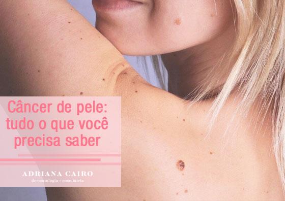 Tudo o que você precisa saber sobre câncer de pele